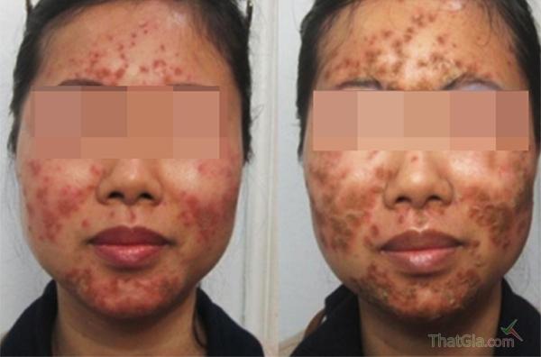 Da mặt bị nổi mụn khi sử dụng kem trộn giả