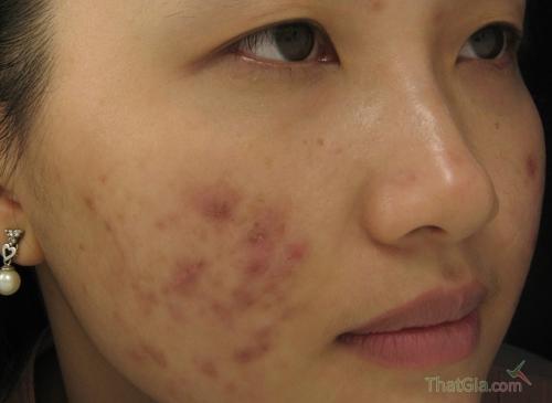 Những biến chứng khi dùng mặt nạ dưỡng da giả không nguồn gốc